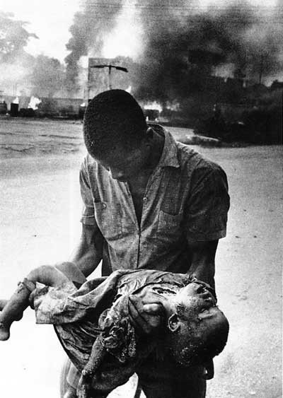 Child Casualty of the Nigeria-Biafra War